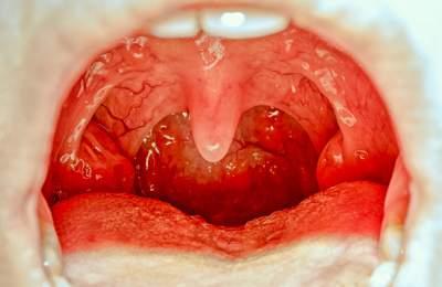 Красный язык назвали тревожным симптомом